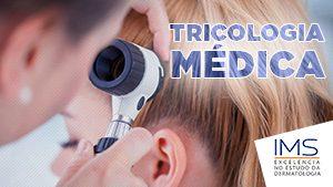 Tricologia Médica 300x169px